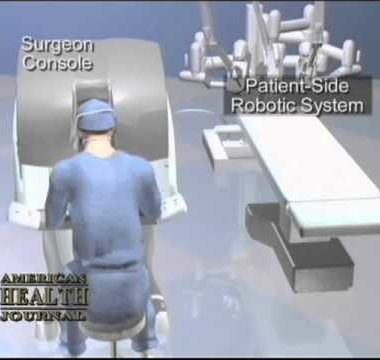 Robot Assisted Prostatectomy Video